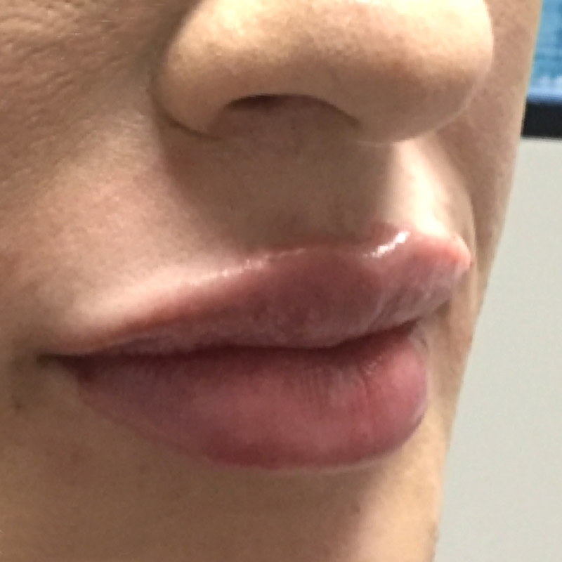 Lips 1 - After