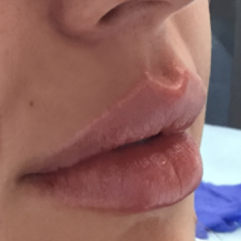 Lips 2 - After