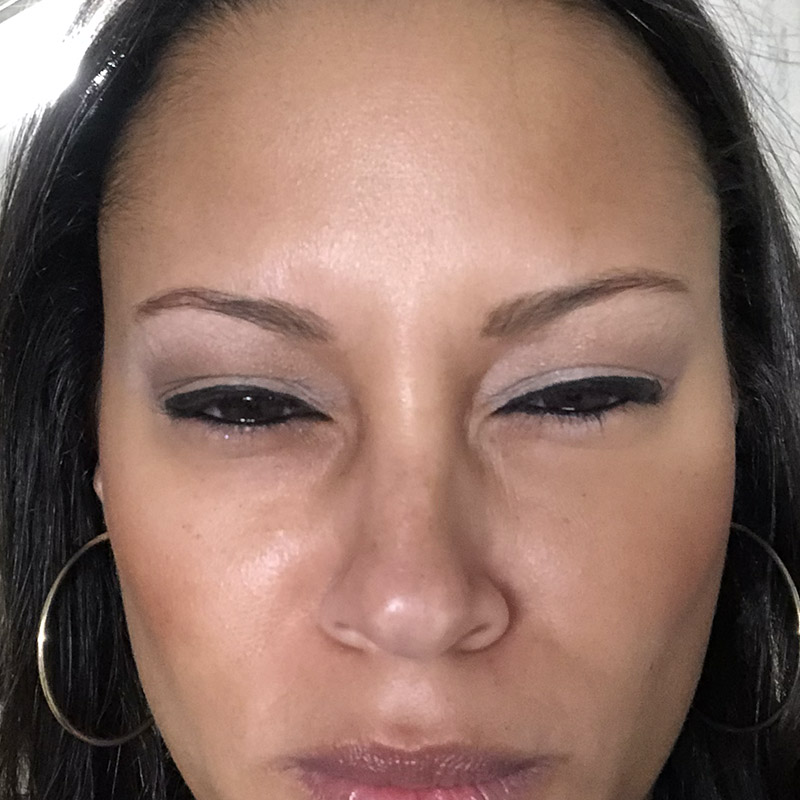 botox 1 - after